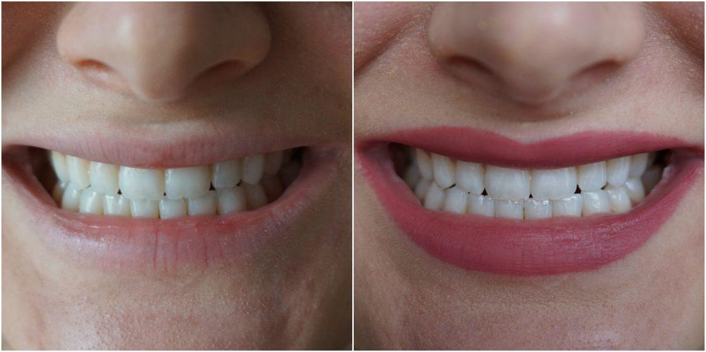 Smile Brilliant Teeth Whitening Testimonial | Madison Fichtl | Madison-fichtl.com