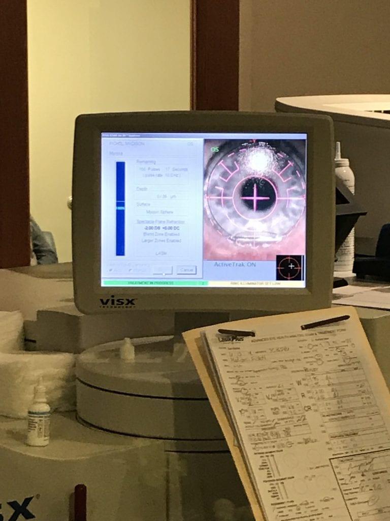 LASIK Eye Surgery Review